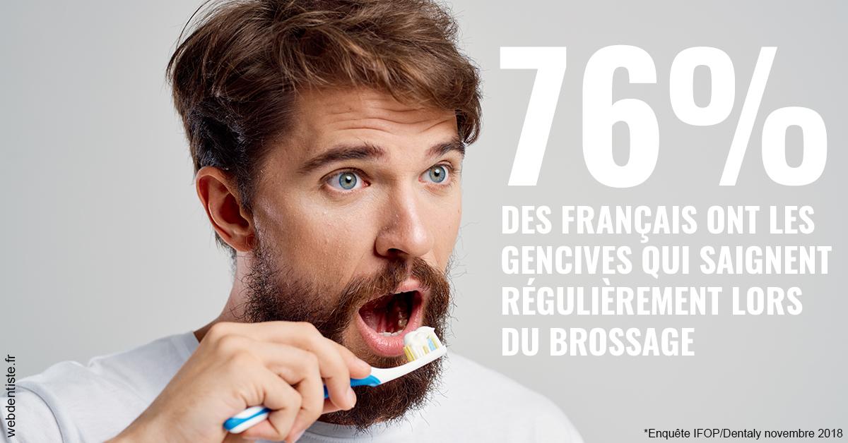 https://selarl-haussmann-setbon.chirurgiens-dentistes.fr/76% des Français 2